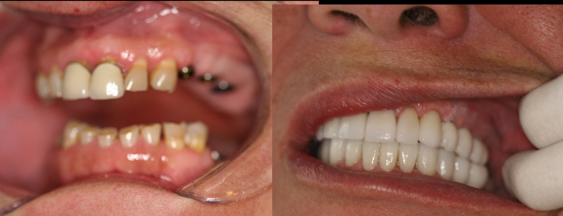 Mouth Dental 12